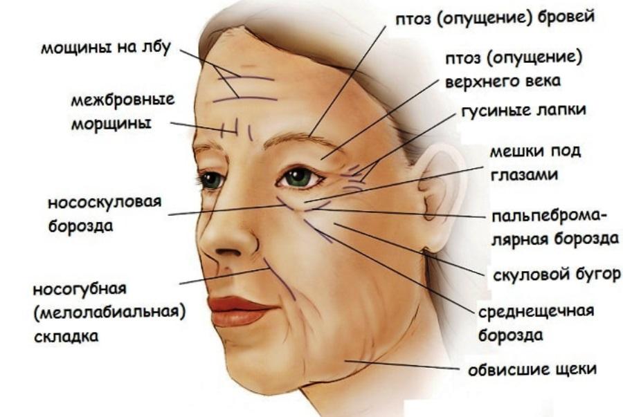 Птоз верхнего века (опущение) – причины, лечение без операции