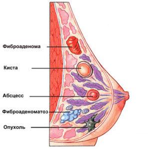 Фиброма (кожи, матки, молочной железы и других органов) – причины, виды, симптомы, диагностика и лечение, фото