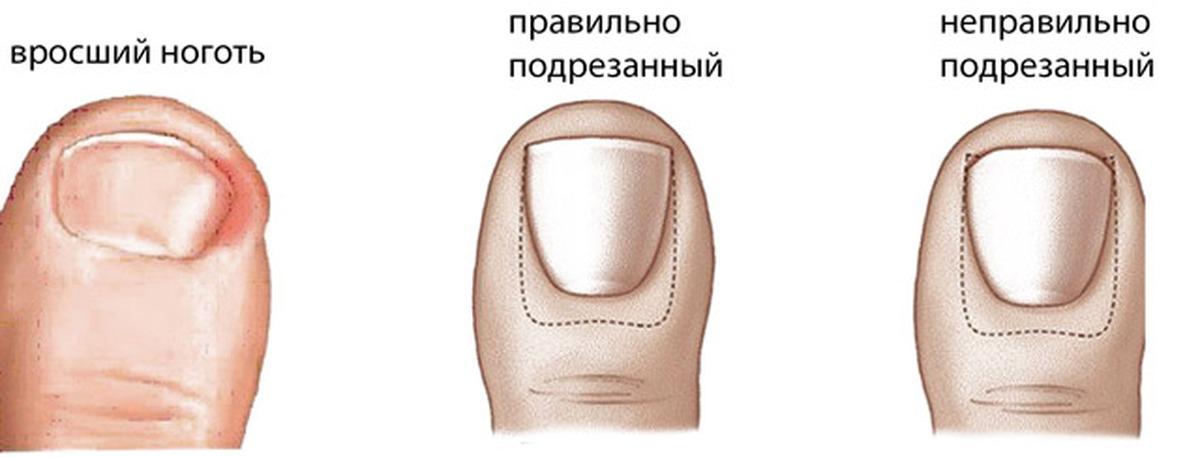 Вросший ноготь. причины, симптомы, операция удаления ногтя и реабилитация.