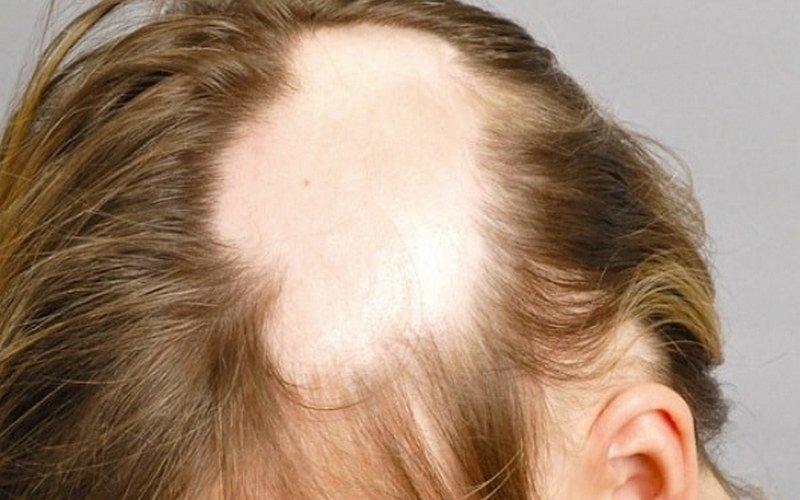 Препараты с миноксидилом для волос: отзывы, инструкция, результаты