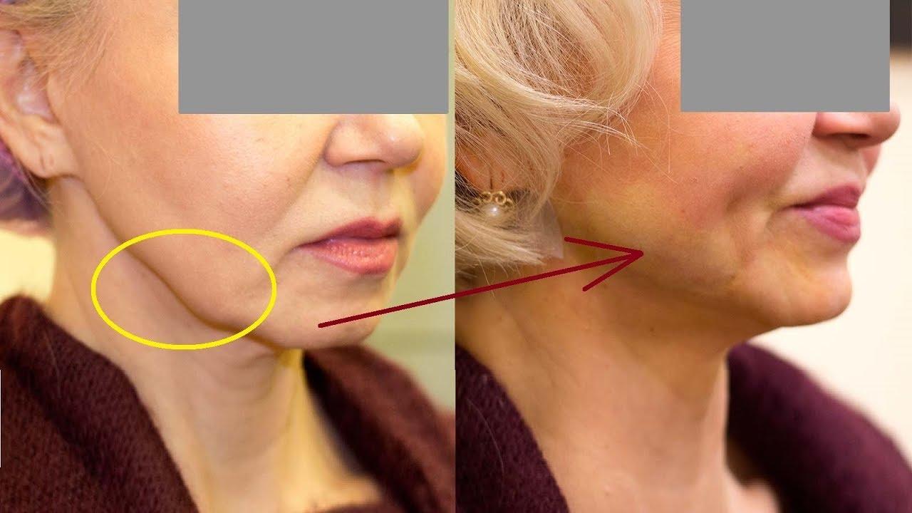 Как убрать брыли на лице? как подтянуть обвисшие щеки после 50 лет ботоксом, инъекциями, нитями, упражнениями, массажем?