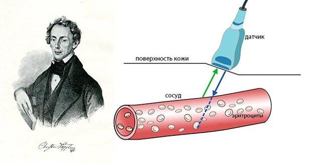 Все о ультразвуковой допплерографии (уздг) сосудов головы и шеи