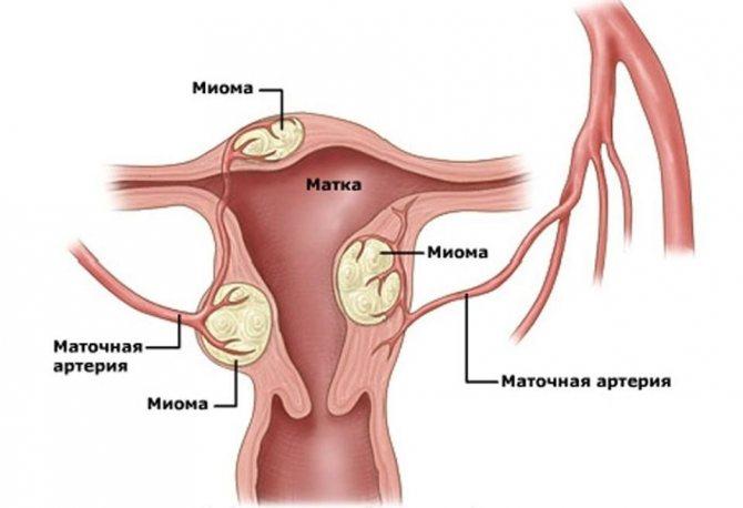 Субсерозная миома матки: симптомы и размеры для операции. когда необходимо удаление субсерозной миомы?