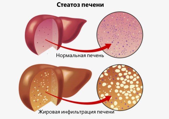 Стеатогепатоз: что это такое и как его лечить? лечение и диета