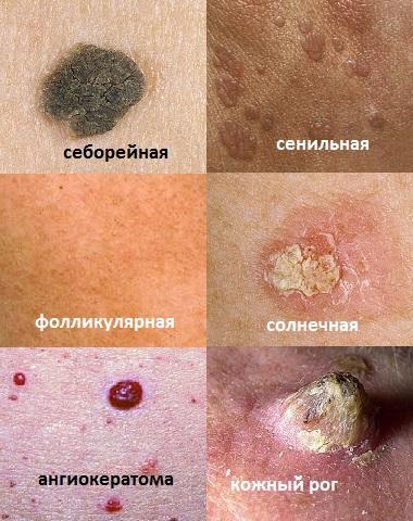 Себорейный кератоз: что это такое, симптомы, фото, лечение