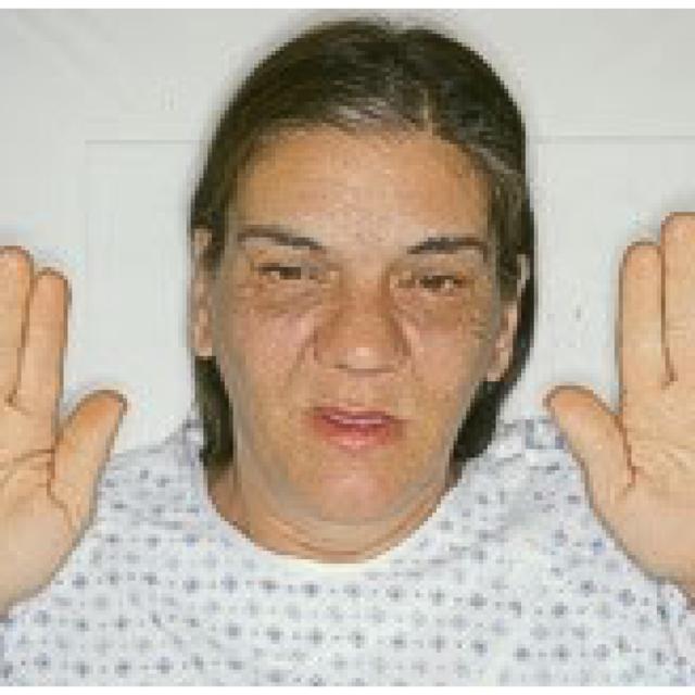 Акромегалия – что это такое? фото, причины и лечение
