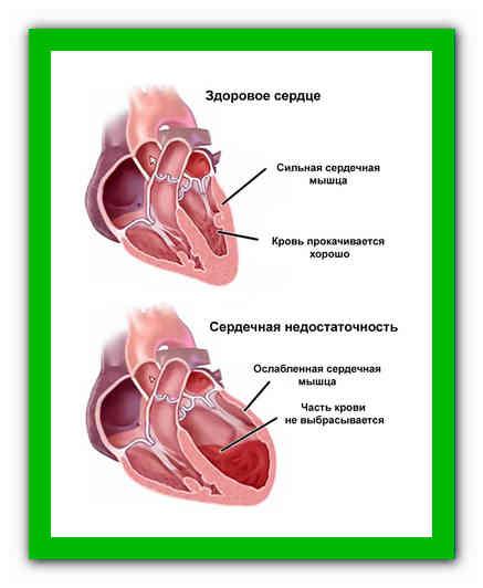 Признаки сердечного кашля у взрослых