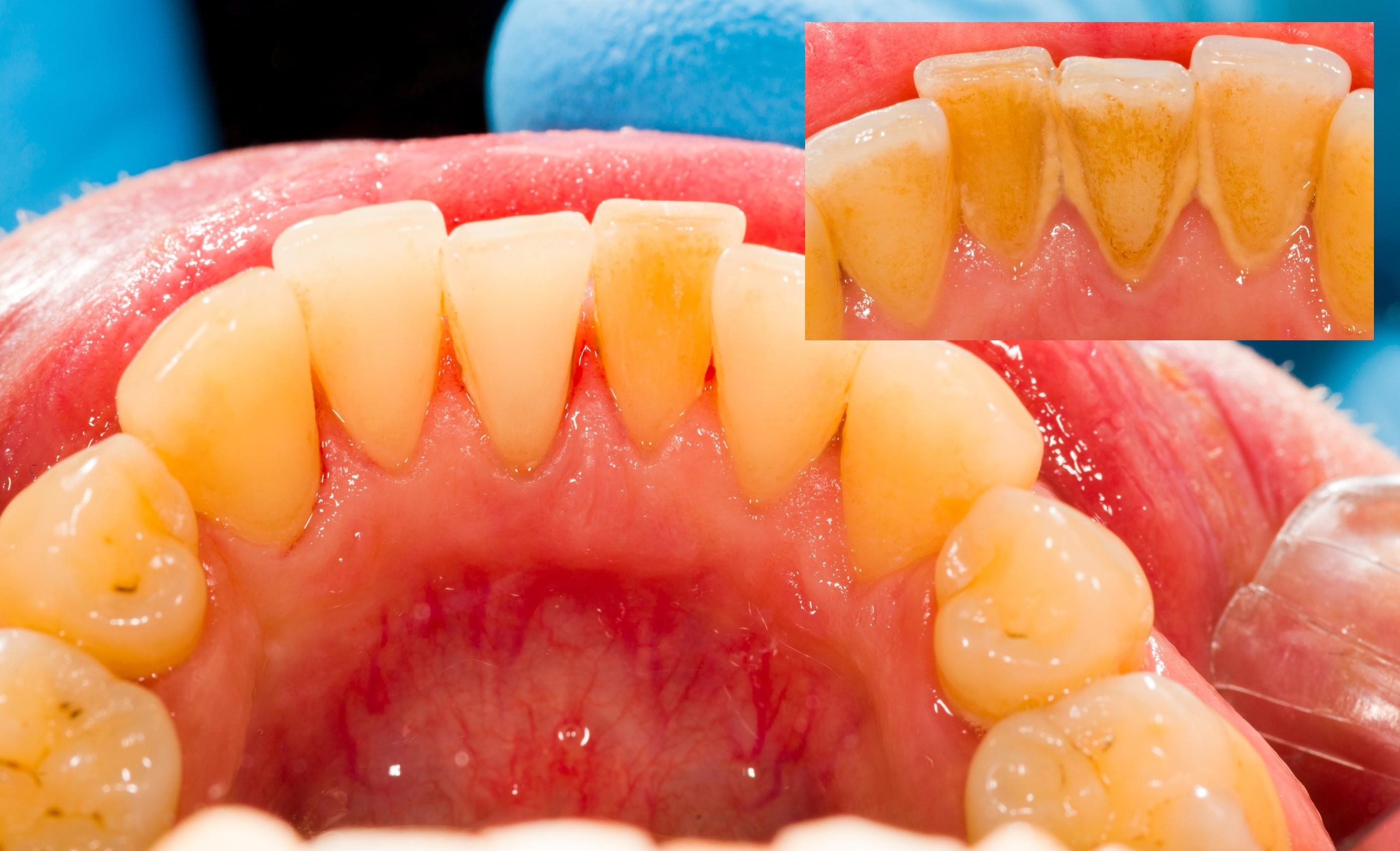 Зубной камень: почему образуется, причины возникновения