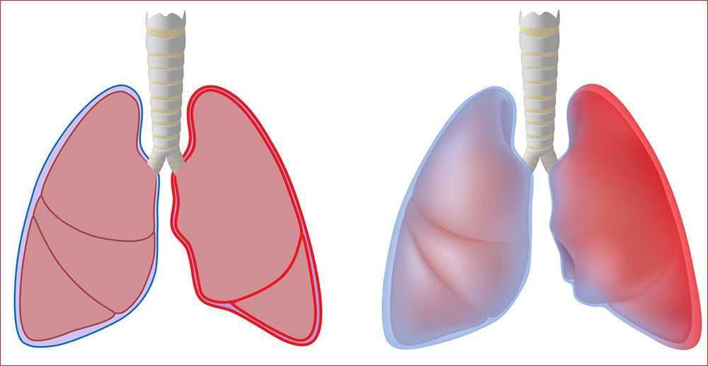 Плеврит легких: что это такое, виды и стадии болезни