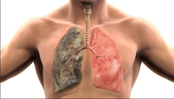 Болезни лёгких у человека: список и их симптомы