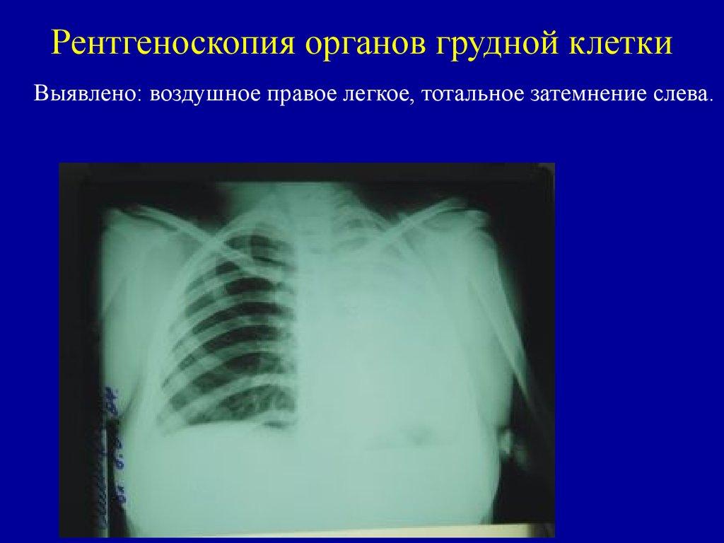 Боль в грудной клетке посередине: тяжело дышать, ком в горле и отрыжка воздухом