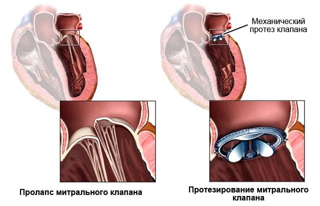 Причины, симптомы и лечение пролапса митрального клапана 1 степени