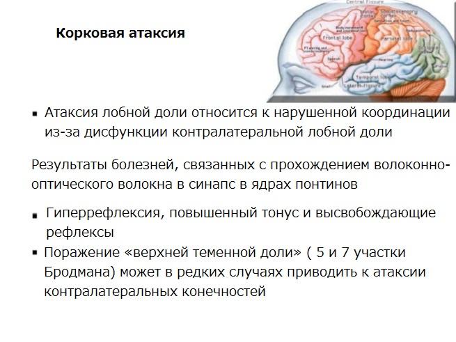 Атаксия - это что такое? виды, диагностика и симптомы заболевания - sammedic.ru