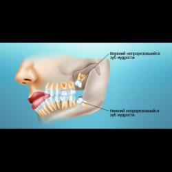 Что такое ретинированные и дистопированные зубы?