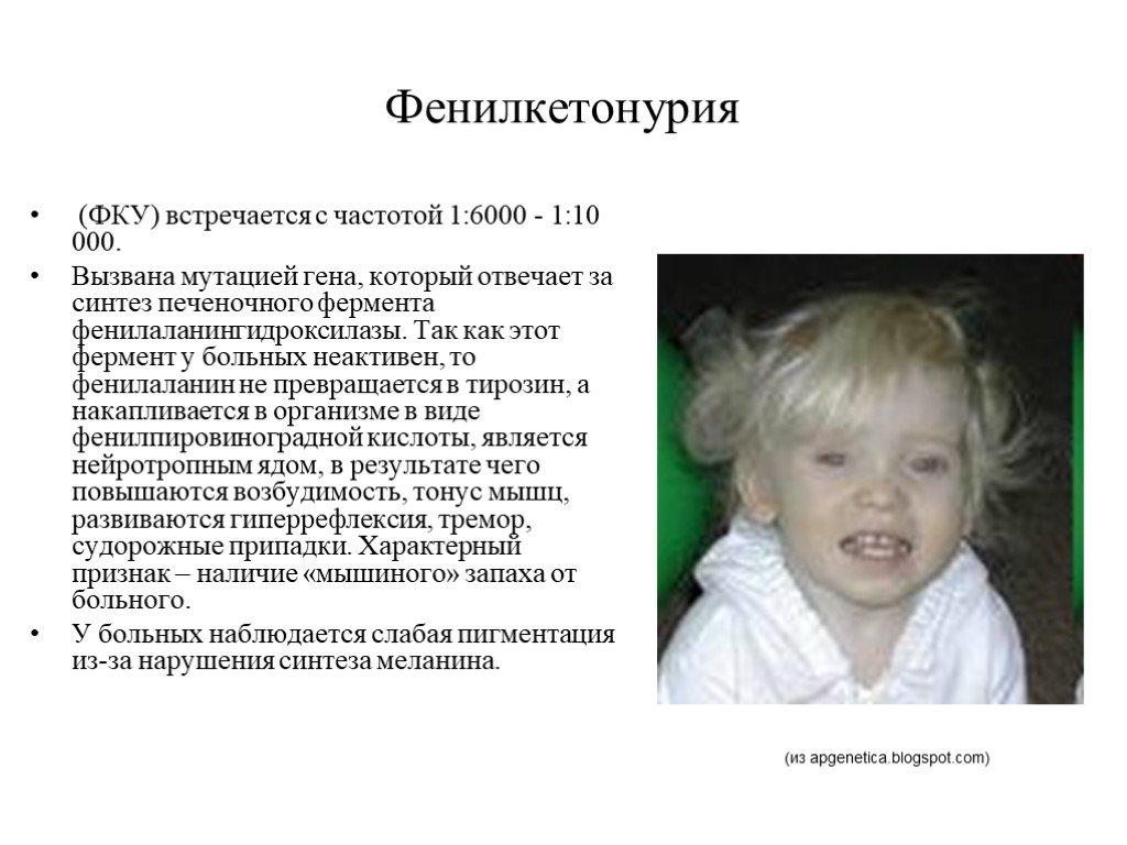 Фенилкетонурия при рождении ребенка, в чем опасность заболевания?