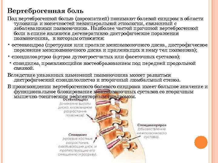 Дорсопатия - что это такое? шейная, поясничная и грудная дорсопатии