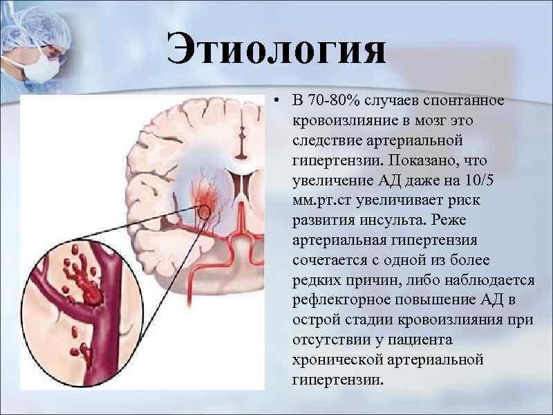 Острое нарушение мозгового кровообращения по ишемическому типу: причины, лечение, профилактика — онлайн-диагностика
