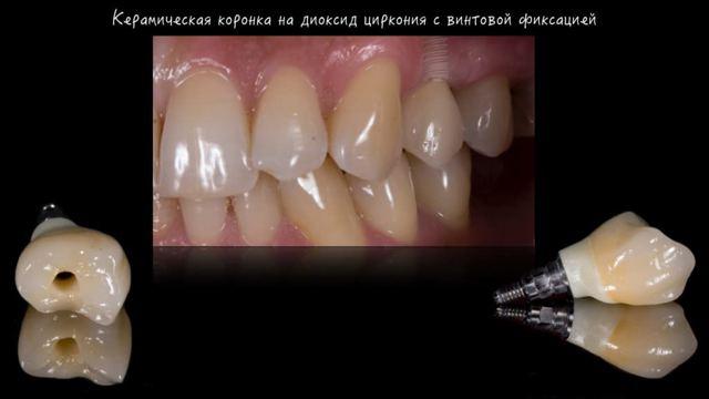 Какую коронку лучше поставить на зуб: виды коронок и материалы изготовления, плюсы и минусы, цены и отзывы