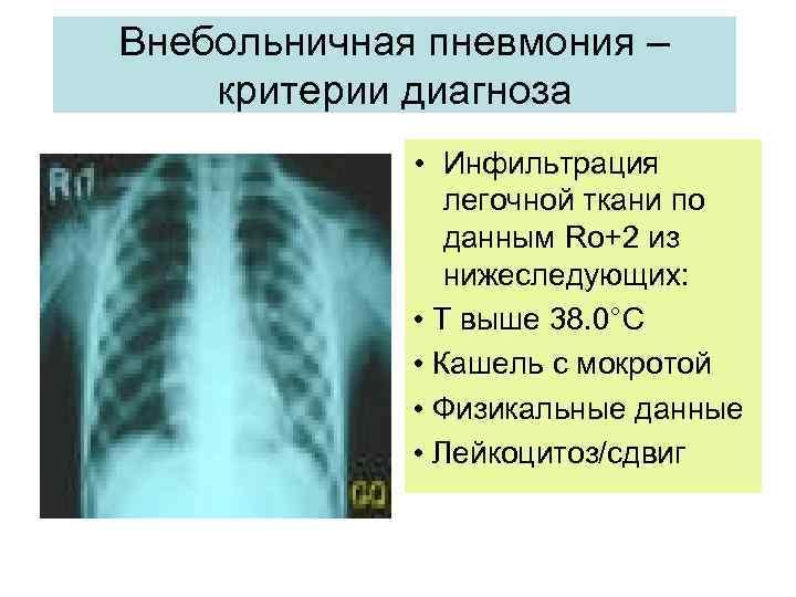 Инфильтрат - что это такое. лечение воспалительного, послеоперационного или постинъекционного инфильтрата