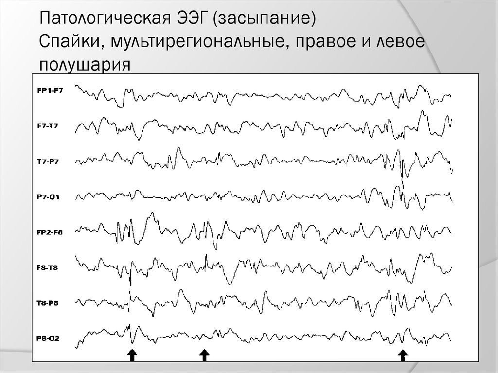 Ээг головного мозга расшифровка показателей