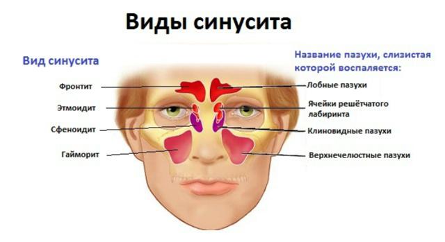 Хронический этмоидит: эффективные способы лечения