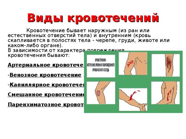 Паренхиматозное кровотечение, признаки и первая помощь