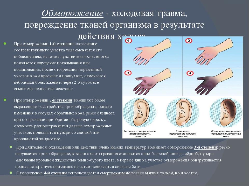 Обморожение кожи, что делать при обморожении