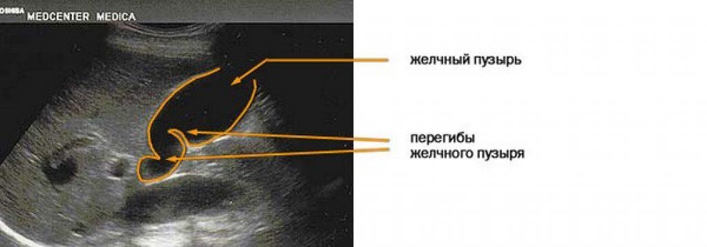 Перегиб желчного пузыря: симптомы и лечение лабильного перекрута (перетяжки) в области шейки
