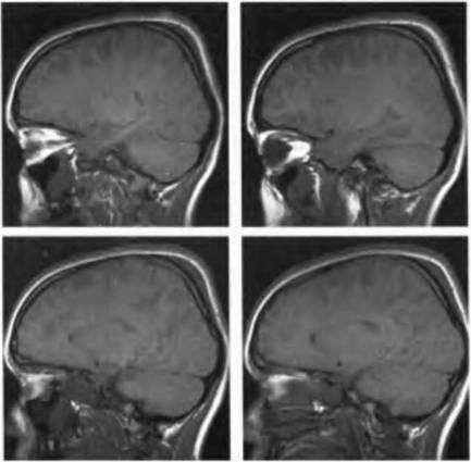 Причины отека головного мозга и его лечение