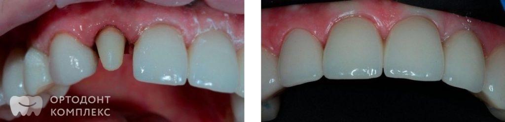 Съёмное протезирование зубов сколько стоит и какой вид стоит выбрать