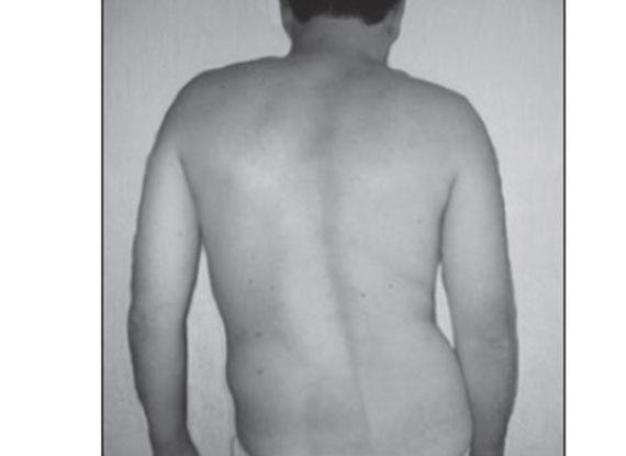 Мышечно-тонический синдром вертеброгенного характера: симптомы и лечение