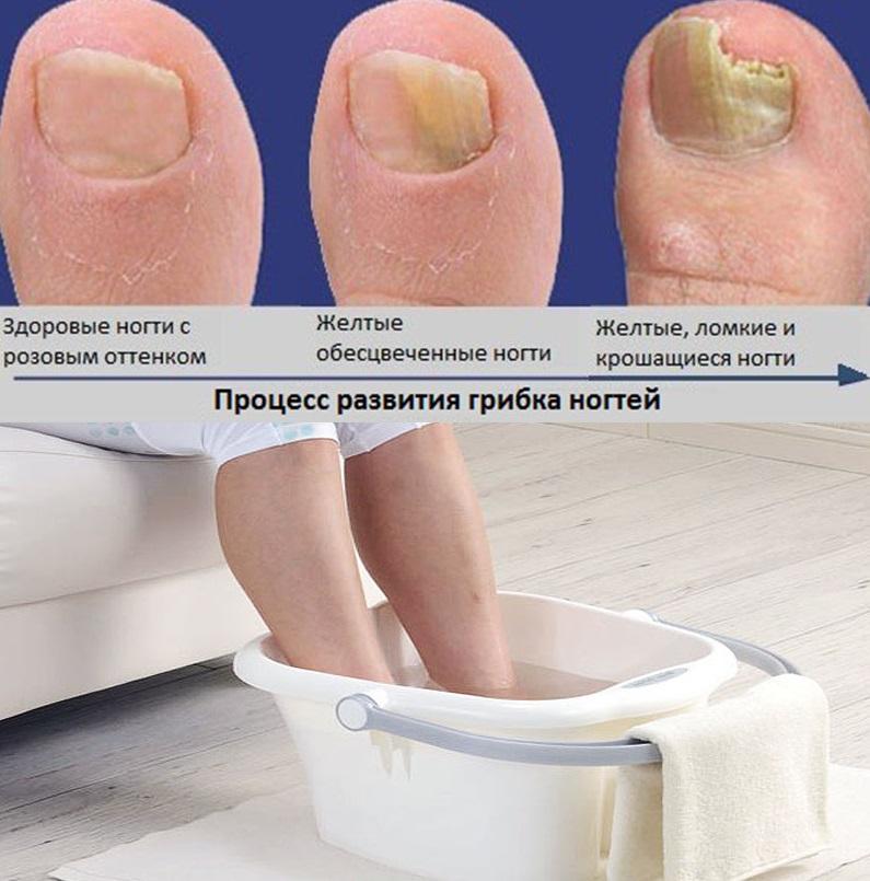 Основные причины грибок ногтей на ногах, симптомы, лечение, профилактика болезни