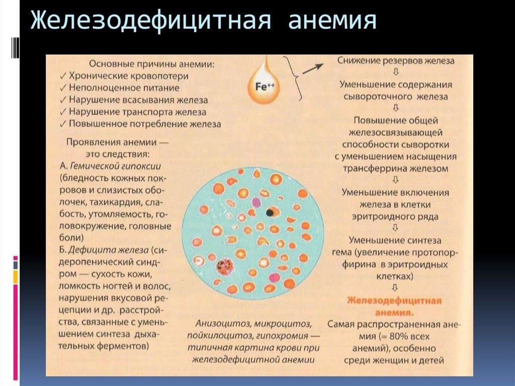 Анемия — виды малокровия, специфические симптомы и методы лечения | здорова и красива