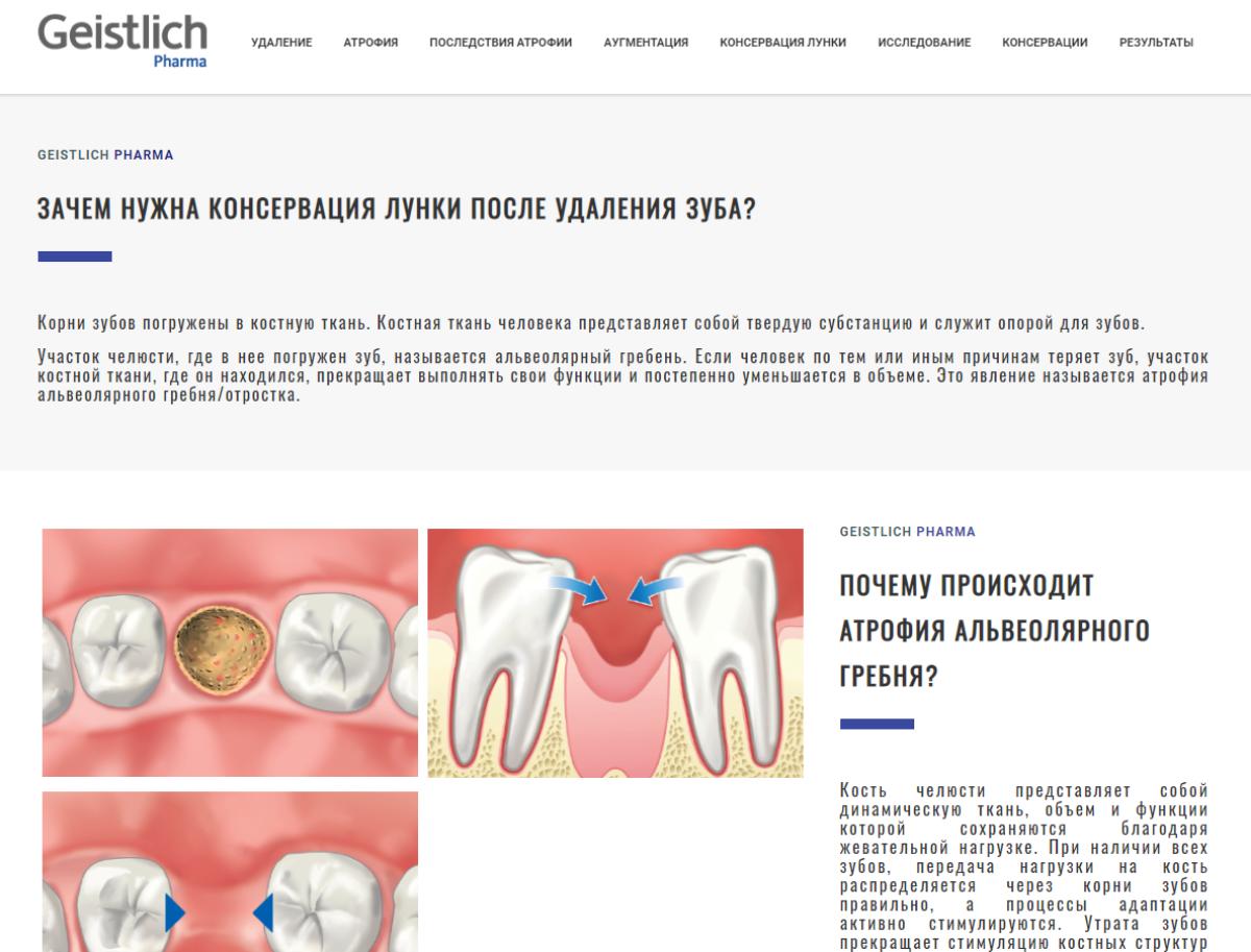Что такое турунды, как их делаю и используют для лечения ушей pulmono.ru что такое турунды, как их делаю и используют для лечения ушей