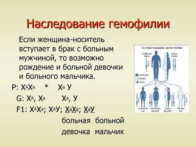 Кахексия - причины, симптомы, стадии болезни, диагностика и методы лечения. кахексия — что это такое: причины и лечение заболевания крайняя степень истощения организма - человек и здоровье