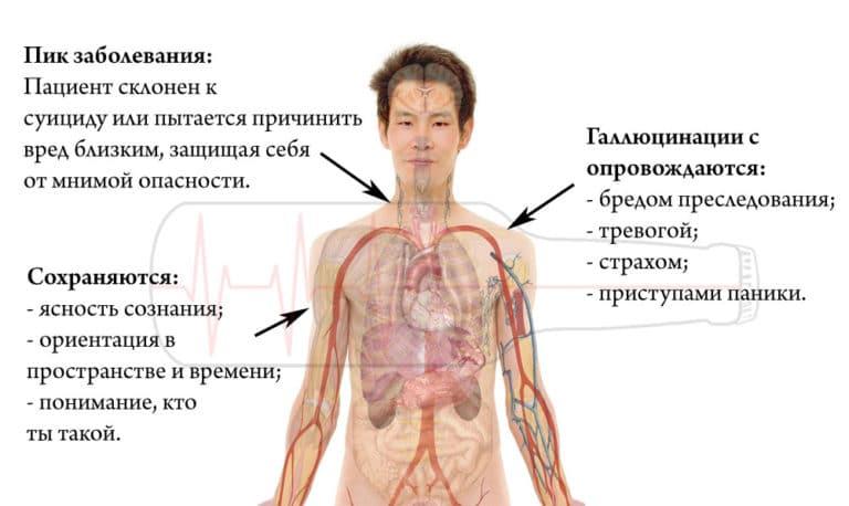 Белая горячка у человека: симптомы, лечение и последствия