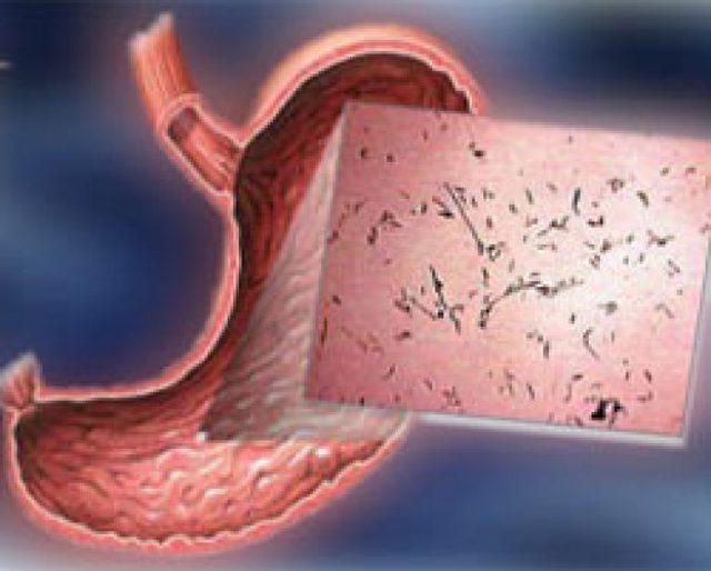 Эрозивный бульбит: симптомы и лечение медикаментами, народными средствами, диета