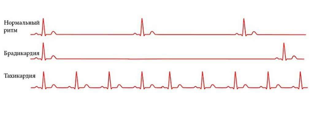 Первая помощь и методы лечения при брадикардии сердца