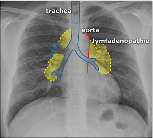 Лимфаденопатия шейных лимфоузлов