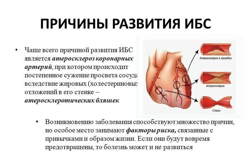 Ишемическая болезнь сердца: что это такое, причины, симптомы и лечение ибс
