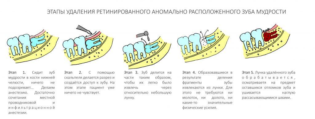 Сколько держать борную кислоту в ушах и как правильно делать турунды из ватного диска и тампоны из марли или бинта для слухового прохода?
