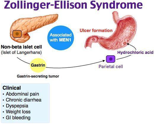 Синдром золлингера - эллисона, лечение, причины, симптомы,  профилактика. , лечение, причины, симптомы,  профилактика.
