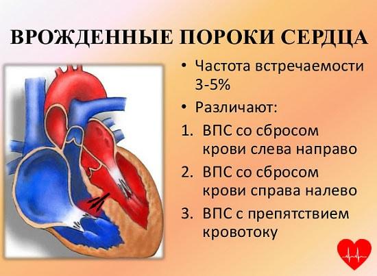 Порок сердца - что это такое, симптомы порока сердца, это смертельно или нет?