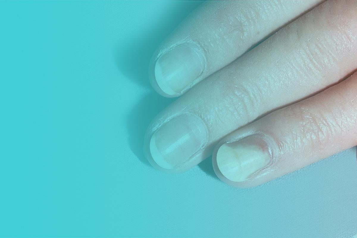 Онихолизис. причины и лечение деформации и дистрофии ногтевой пластины на руках и ногах в домашних условиях - medside.ru