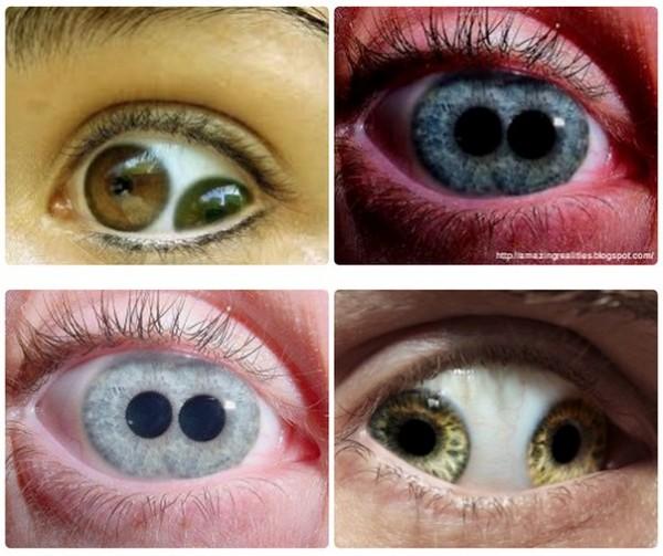 Что такое зрачок глаза
