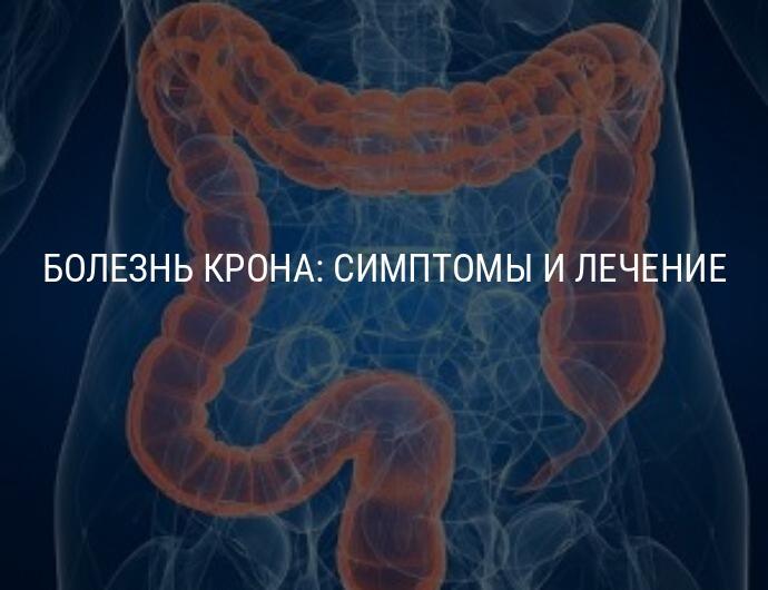 Болезнь крона – симптомы и лечение у взрослых медикаментами, народными средствами и диетой
