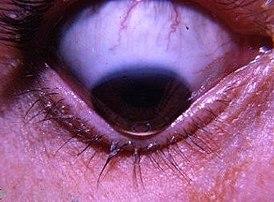 Склера глаза: строение, функции, заболевания и лечение
