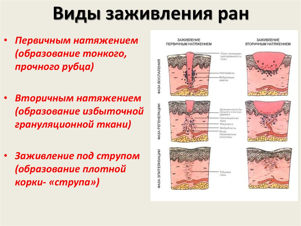 Чем опасны гнойные гранулемы