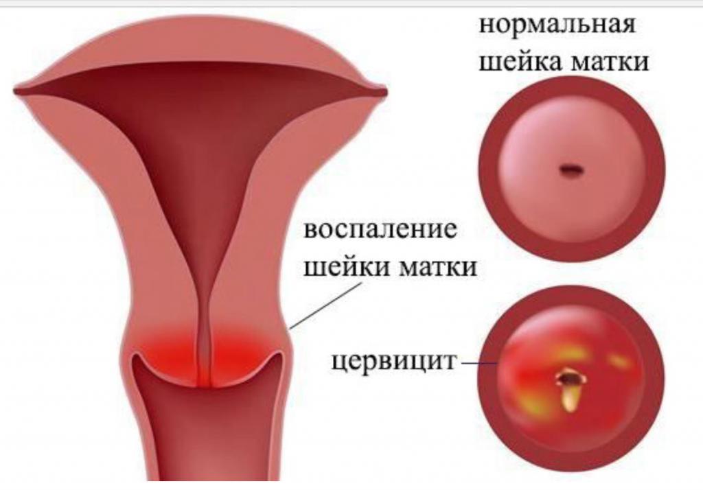 Хронический эндоцервицит