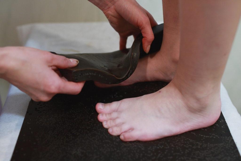 Озокеритотерапия у пациентов с арторозом коленного сустава
